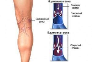 Можно ли делать эндопротезирование коленного сустава при варикозе