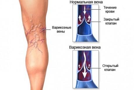 Лечение вен на ногах в ростове на дону