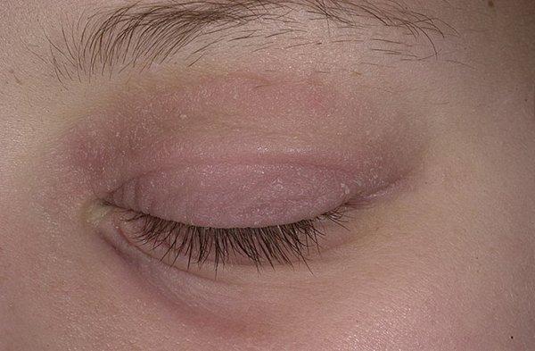 Что за болезнь псориаз и как лечить её - Псориаз