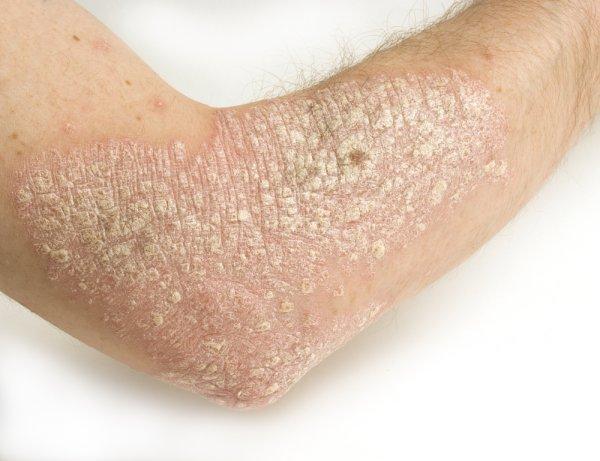 Экссудативный псориаз: фото, описание недуга, первые проявления ...