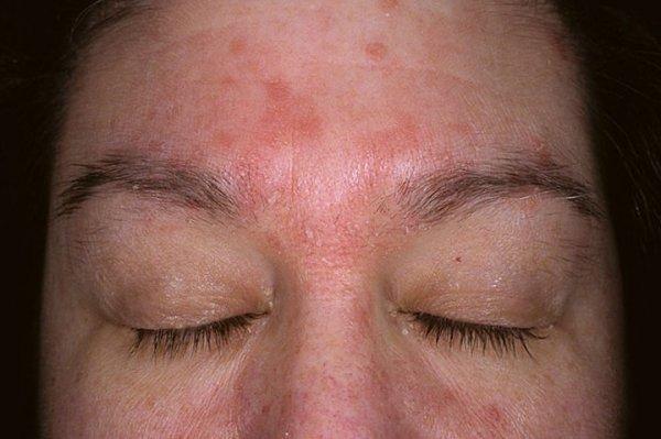 Псориаз на лице как снять обострение