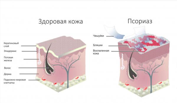 Папилломы на шее лечение препараты