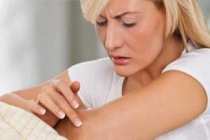 Признаки и симптомы псориаза