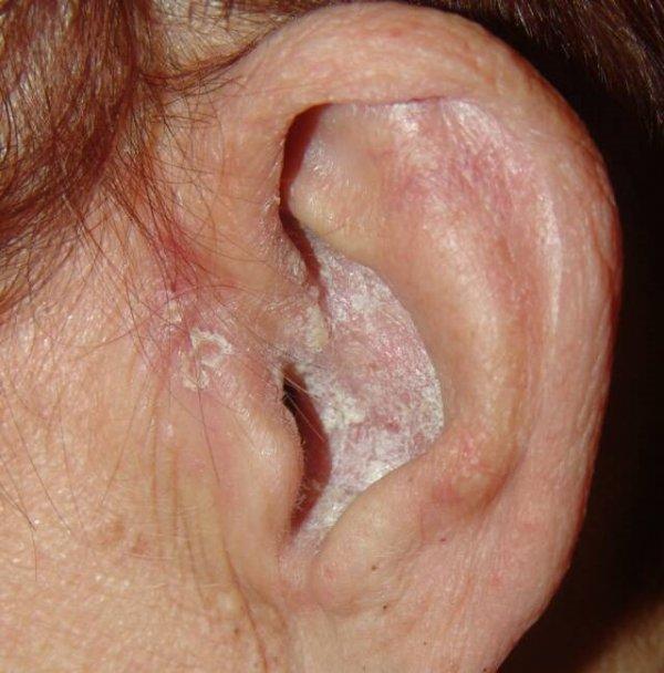 В ухе треснула кожа
