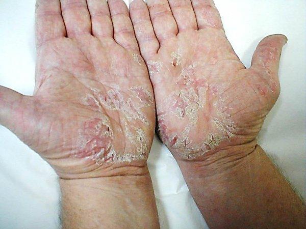 Реально вылечить Псориаз - Вся информация о лечении