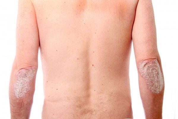 Заболевания кожи рук фото и названия
