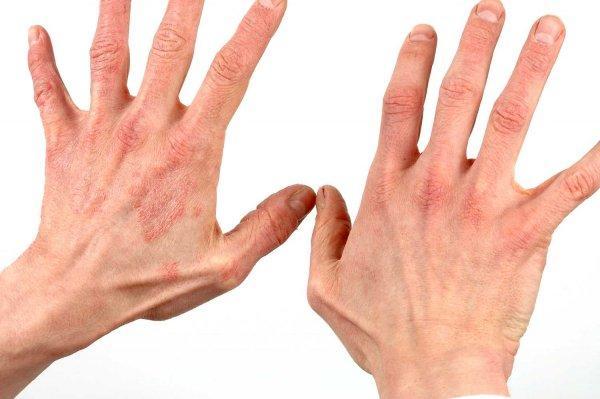 Псориаз на руках: фото, симптомы заболевания, чем лечить? Способы ...