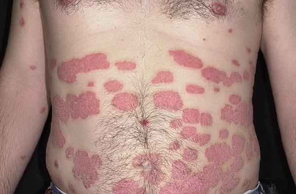 Лечение растяжения плечевого сустава