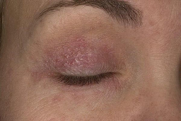 Лечение Псориаза В Перми