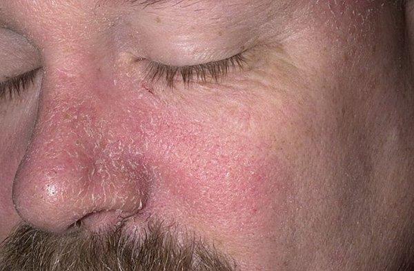 Лечение Псориаза В Кисловодске