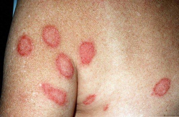 Псориаз: симптомы, проявление первых признаков, его лечение и фото