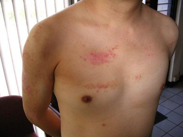 Псориаз на члене: какие отличительные признаки болезни бывают у ...