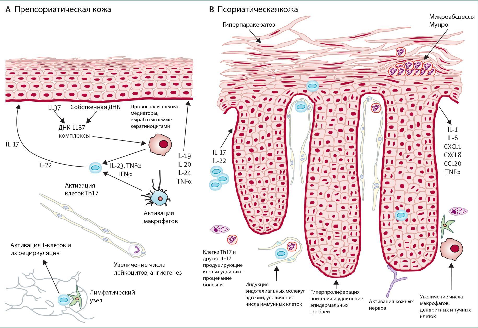 Что такое псориаз. Как выглядит болезнь (фото) и как она проявляется