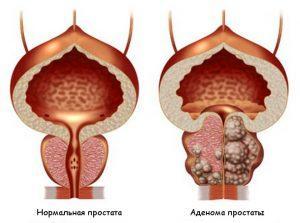 чем снять симптомы простатита у мужчин