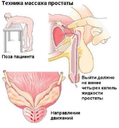 можно ли массаж при обострении простатита