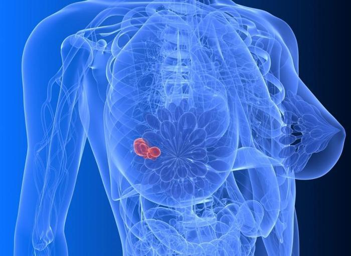 Пункционная биопсия молочной железы - Wom-a-Health