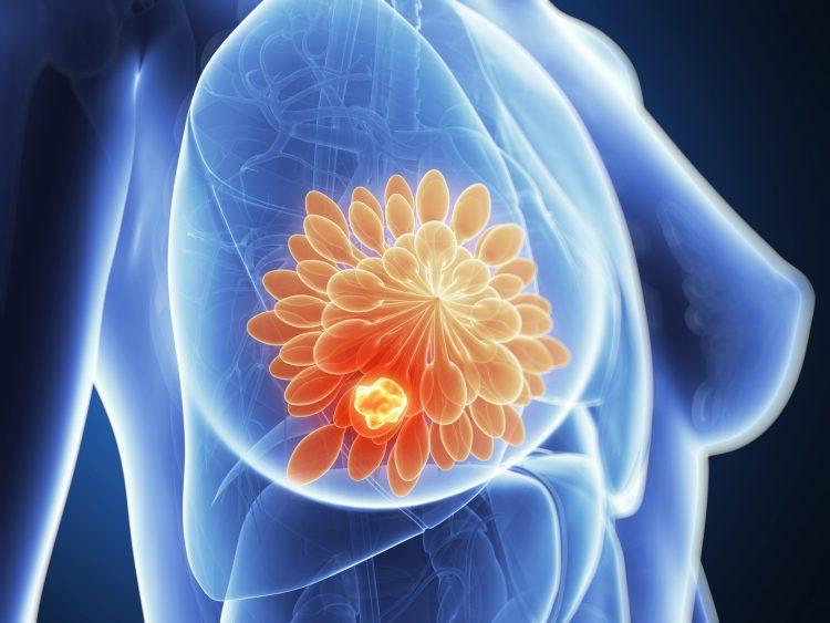 Лечение и последствия диффузной кистозной мастопатии