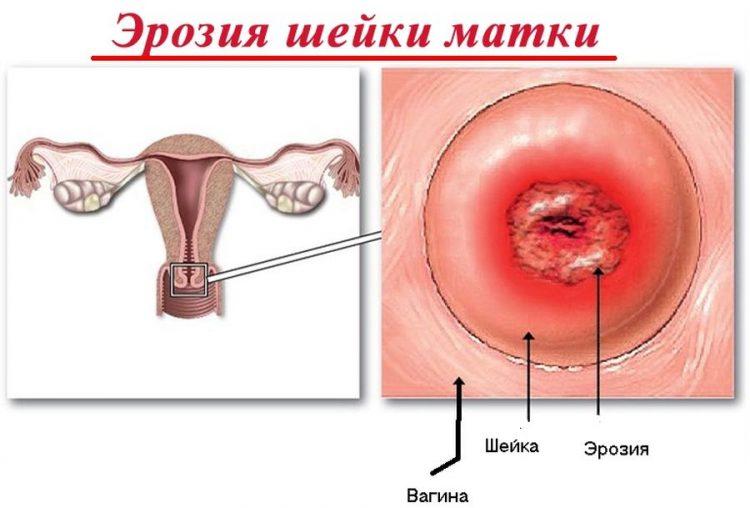 Как лечить эрозию шейки матки в домашних условиях 10