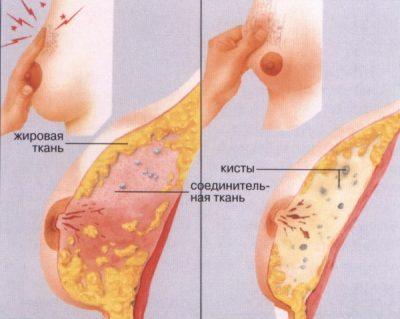 Фиброзно-кистозная мастопатия молочной железы код по МКБ-10 симптомы и лечение