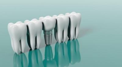 ставить ли зубной имплант
