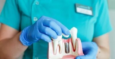 сколько стоит поставить зубной имплант