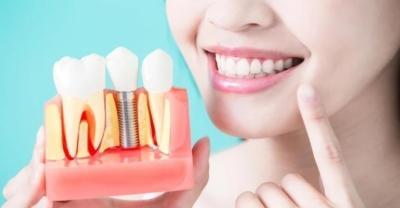 верхние зубные импланты